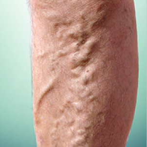 picture of Varicose veins, distinguished from reticular veins by a diameter of 3 mm or more