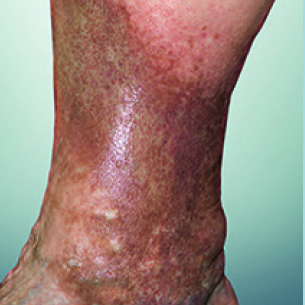picture of Skin changes ascribed to venous disease