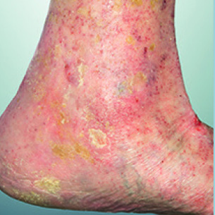 picture of Skin changes in conjunction with healed ulceration